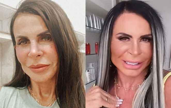 No final de 2020,Gretchen passou pelo procedimento de harmonização facial