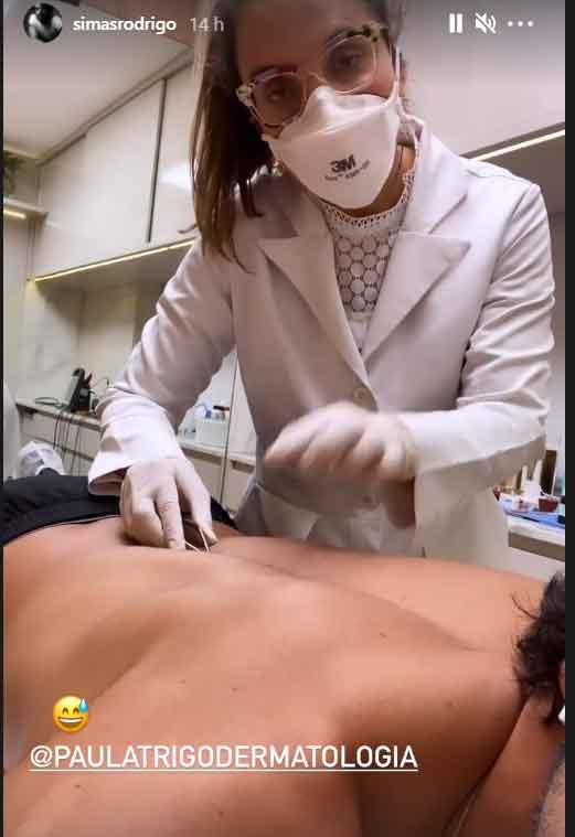 Rodrigo Simas passa por micro-cirurgia para a retirada de uma verruga, nas costas