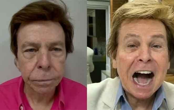 Nelson Rubens opta pela harmonização facial